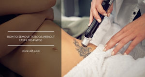 How To Remove Tattoos Without Laser Treatment